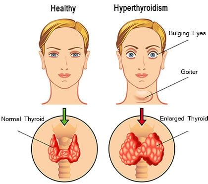 Literature review on thyroid disorder